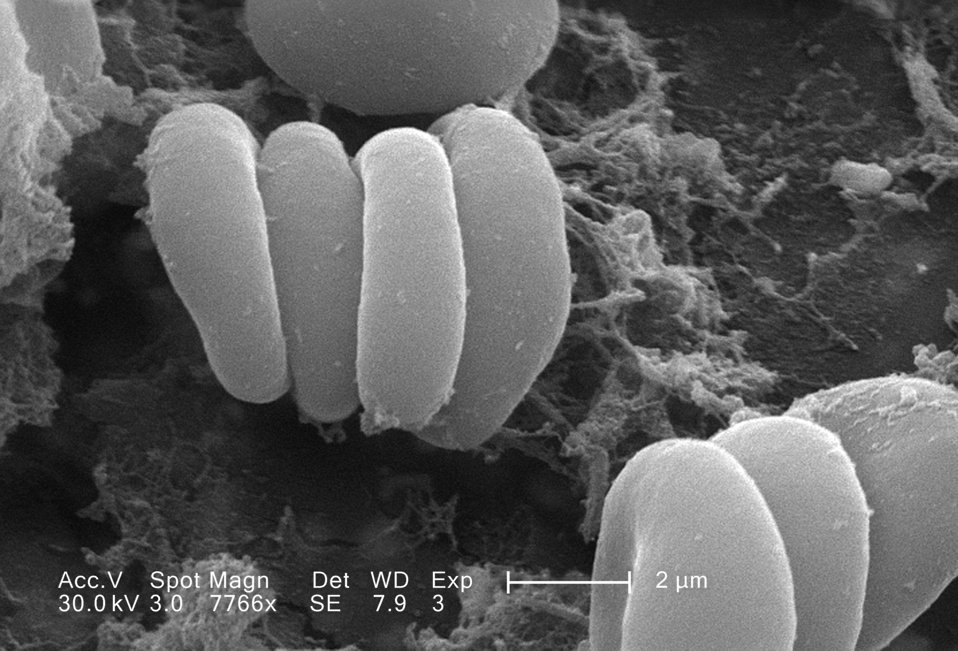 This scanning electron micrograph (SEM) depicted a closer view of a number of red blood cells found enmeshed in a fibrinous matrix on the lu