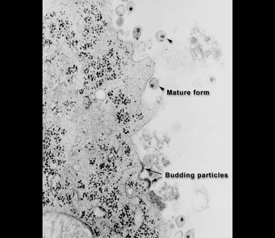 This transmission electron micrograph (TEM) depicts HIV-1 budding and free virions.