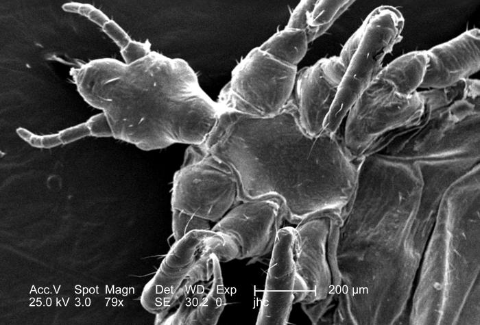 Under a relatively low magnification of 79x, this 2006 scanning electron micrograph (SEM) depicted a ventral, or inferior view, of a male lo