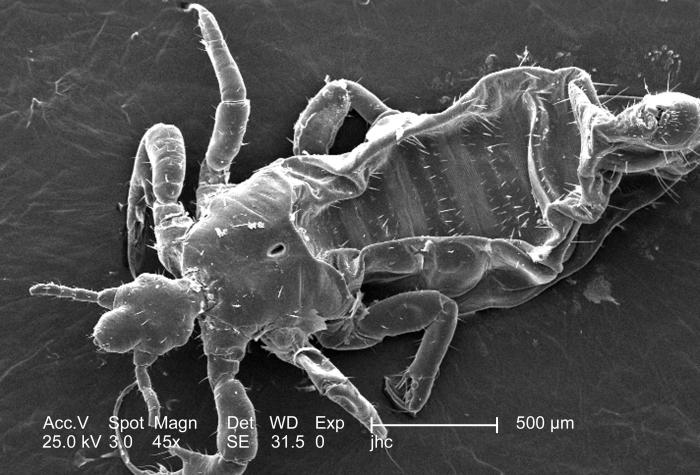 Under a relatively low magnification of 45x, this 2006 scanning electron micrograph (SEM) depicted a dorsal, or superior view, of a male lou