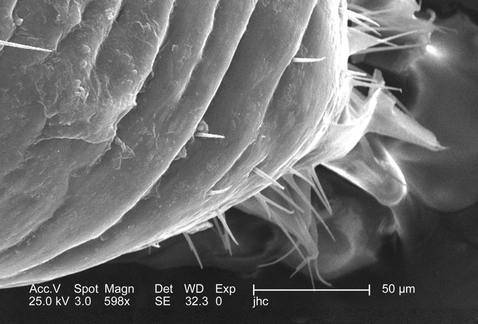 Magnified 598x, this 2006 scanning electron micrograph (SEM) depicted an enlarged view of the chitinous, exoskeletal surface of a male louse