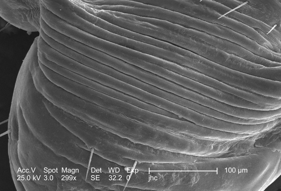 At a low magnification of 299x, this 2006 scanning electron micrograph (SEM) depicted an enlarged view of the chitinous, exoskeletal surface