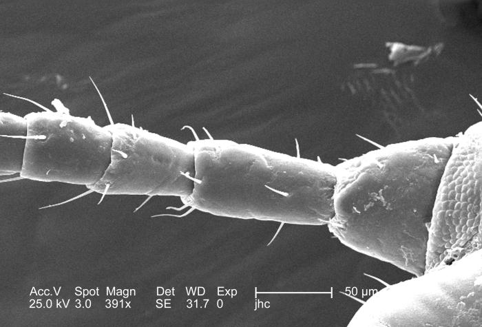 At a moderate magnification of 391x, this 2006 scanning electron micrograph (SEM) depicted an enlarged dorsal view at the proximal end of th
