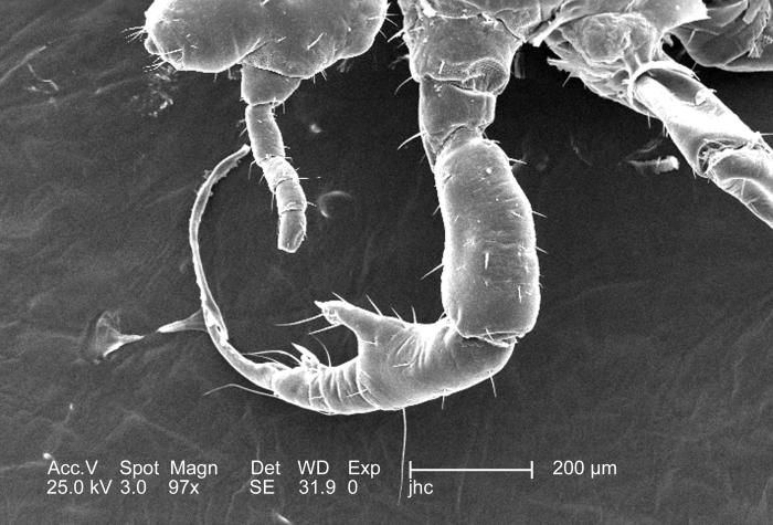 Under a relatively low magnification of 97x, this 2006 scanning electron micrograph (SEM) depicted a dorsal view of a male body louse, Pedic