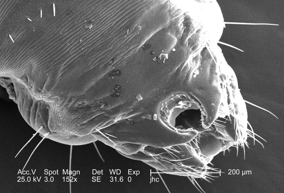 At double the magnification of PHIL #9239, this 2006 scanning electron micrograph (SEM), magnified 152x, revealed the distal tip of the abdo
