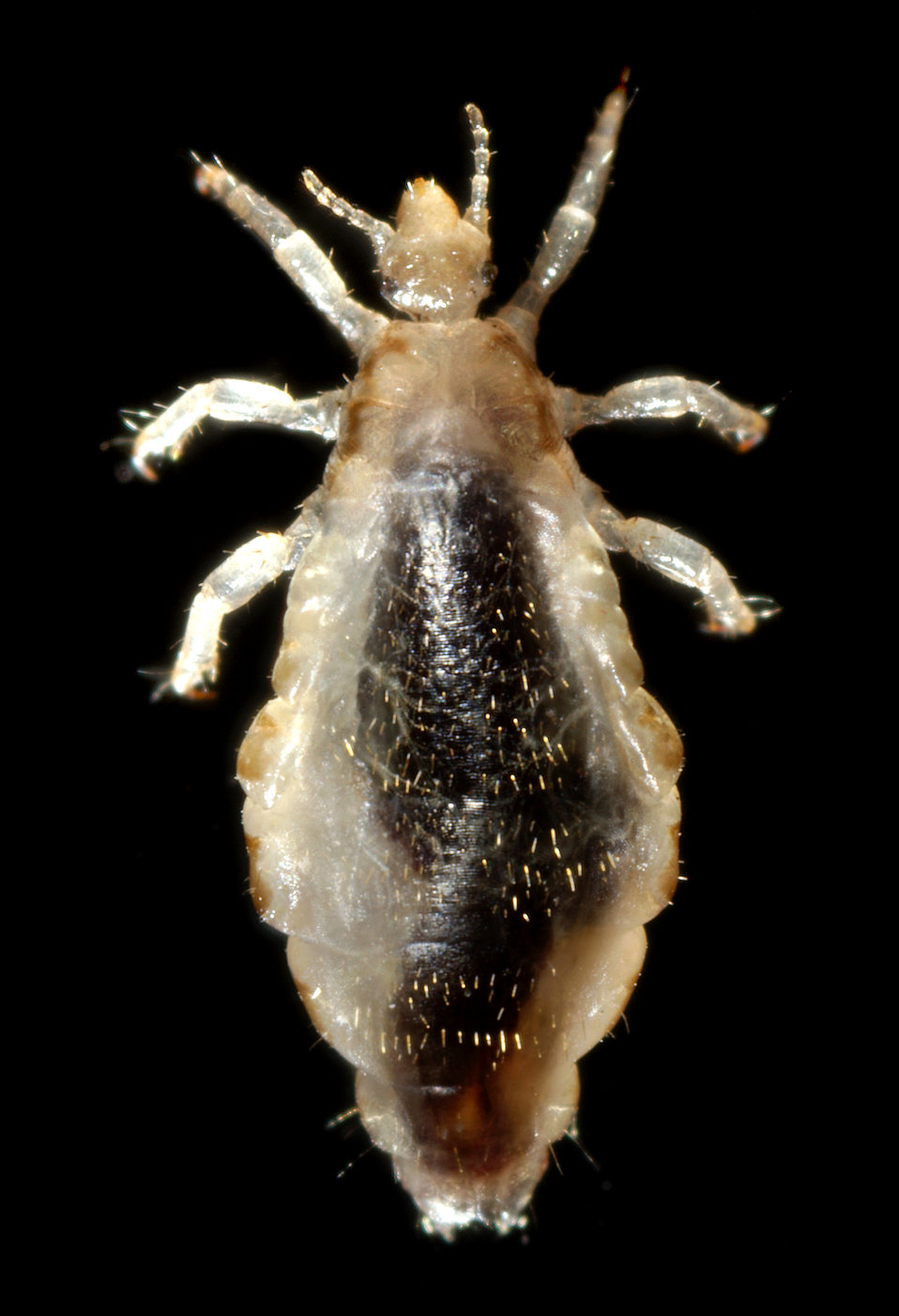 This 2006 photograph depicted a dorsal view of a female body louse, Pediculus humanus var. corporis. Some of the external morphologic featur