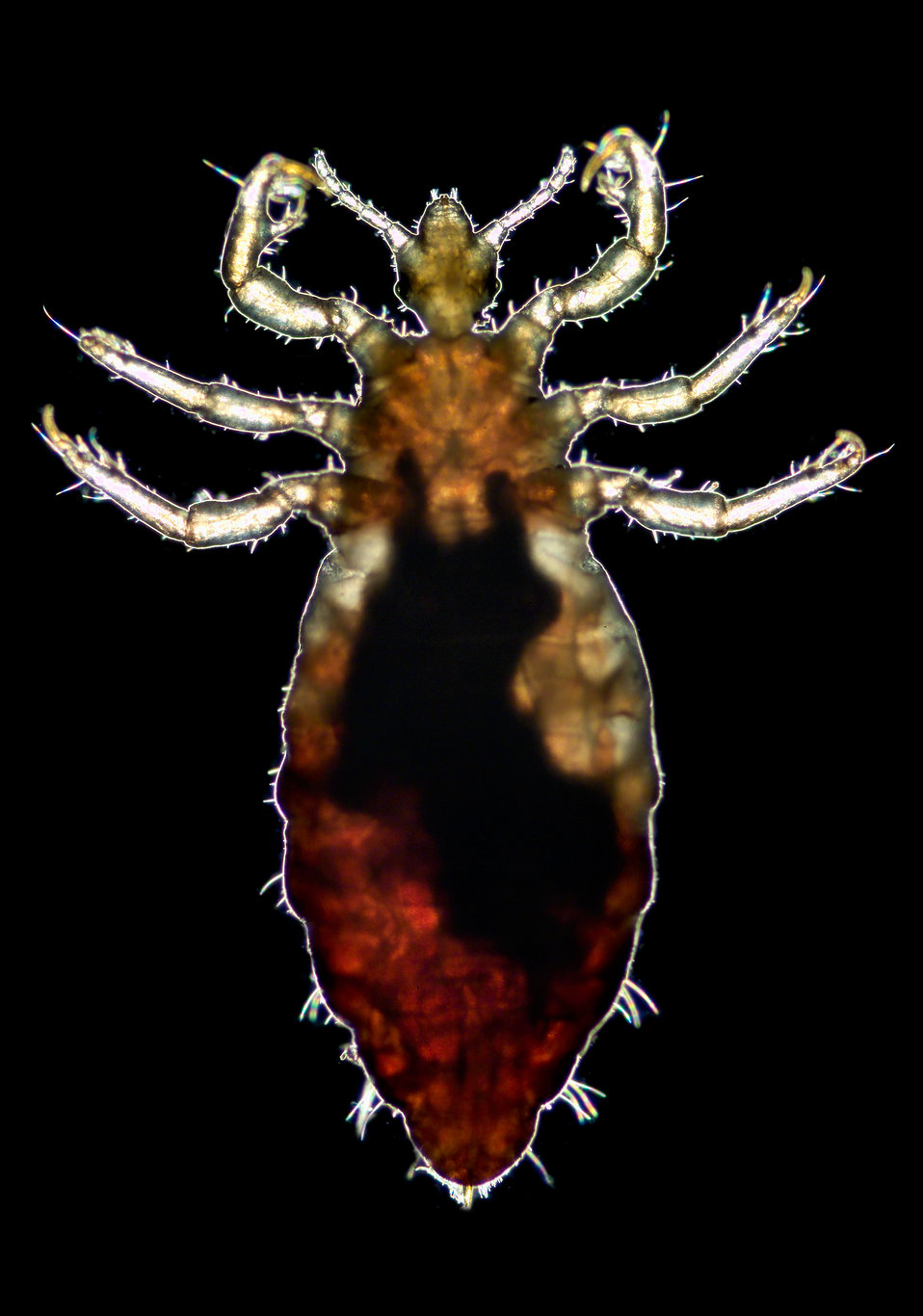 This 2006 photograph depicted a ventral view of a male body louse, Pediculus humanus var. corporis. Its counterpart, the dorsal view may be