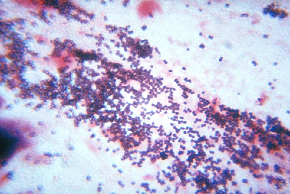 This sputum smear shows staphylococcus bacteria using Gram stain technique in a patient with staphylococcal pneumonia.