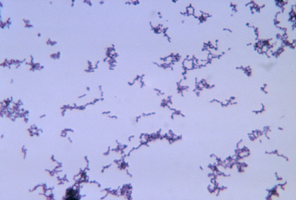 This micrograph depicts the gram-positive bacterium Propionibacterium acnes grown in thioglycollate medium at 48 hours.