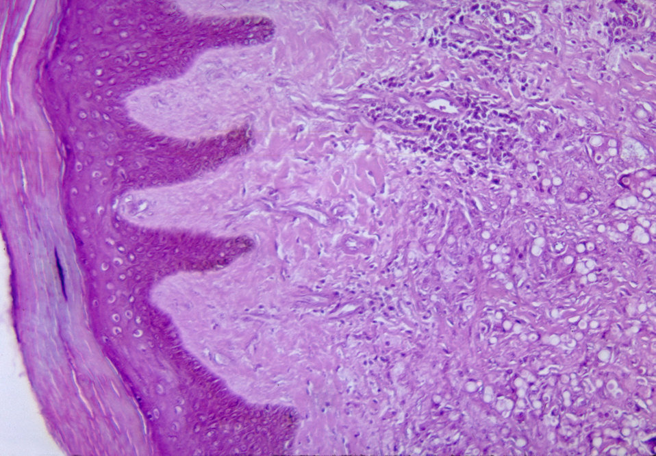 This micrograph depicts the histopathologic changes associated with lobomycosis of the skin.