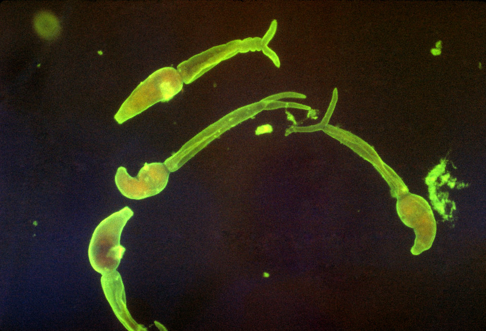 Cercariae of Schistosoma mansoni.  Indirect fluorescent antibody stain.  Parasite.