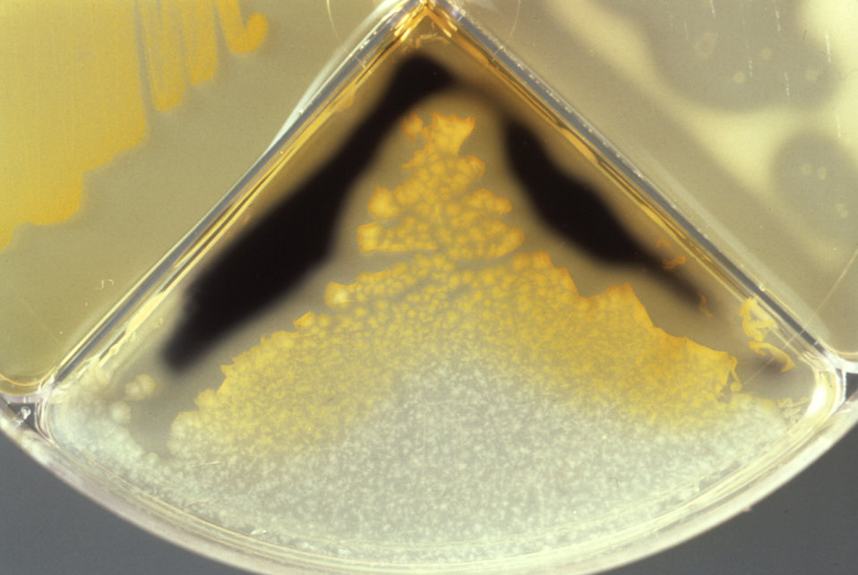 This Presumpto II quadrant plate developed by the CDC's Anaerobe Section, is showing a positive starch hydrolysis reaction.