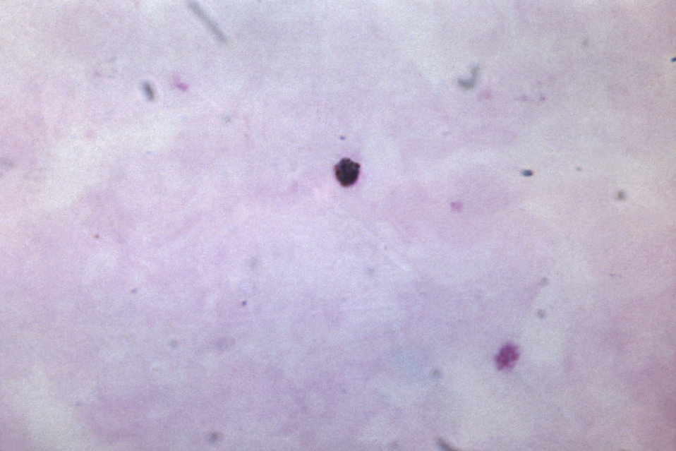 This thick film specimen reveals a growing Plasmodium malariae trophozoite.