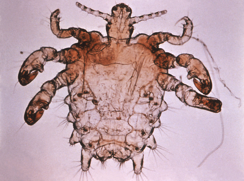 This is an enlargement of a Phthirus pubis, or more commonly known as the pubic or crab louse.