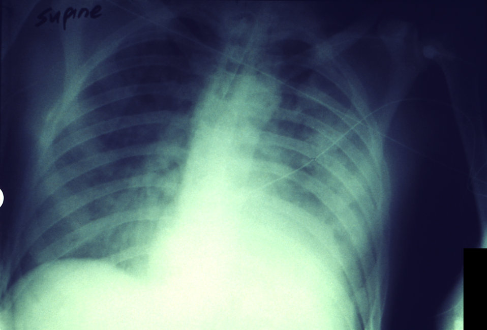 This anteroposterior x-ray reveals a progressive plague infection affecting both lung fields in this patient.
