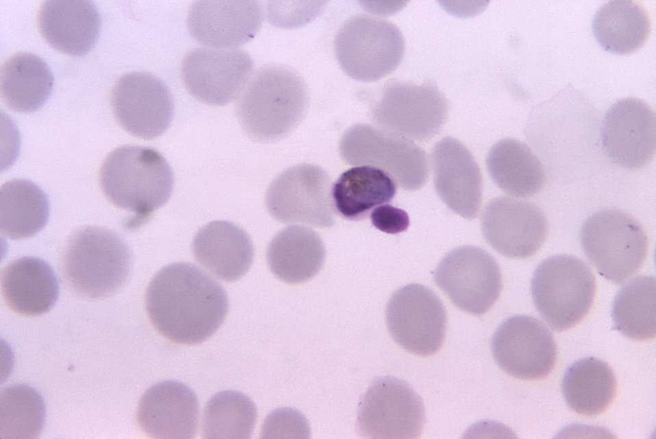 This thin film photomicrograph depicts a mature Plasmodium malariae trophozoite using Giemsa stain; Magnified 1125X.