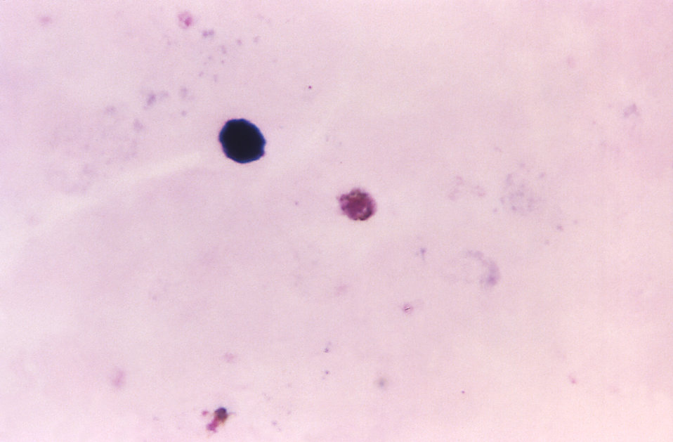 This thick film photomicrograph depicts a Plasmodium malariae gametocyte, using Giemsa stain technique.