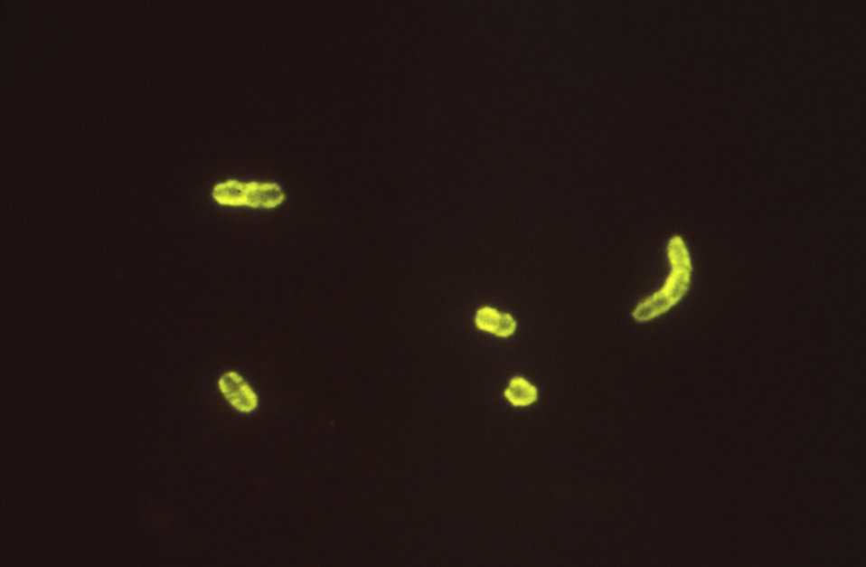 This photomicrograph depicts Yersinia pestis bacteria using a fluorescent antibody stain.