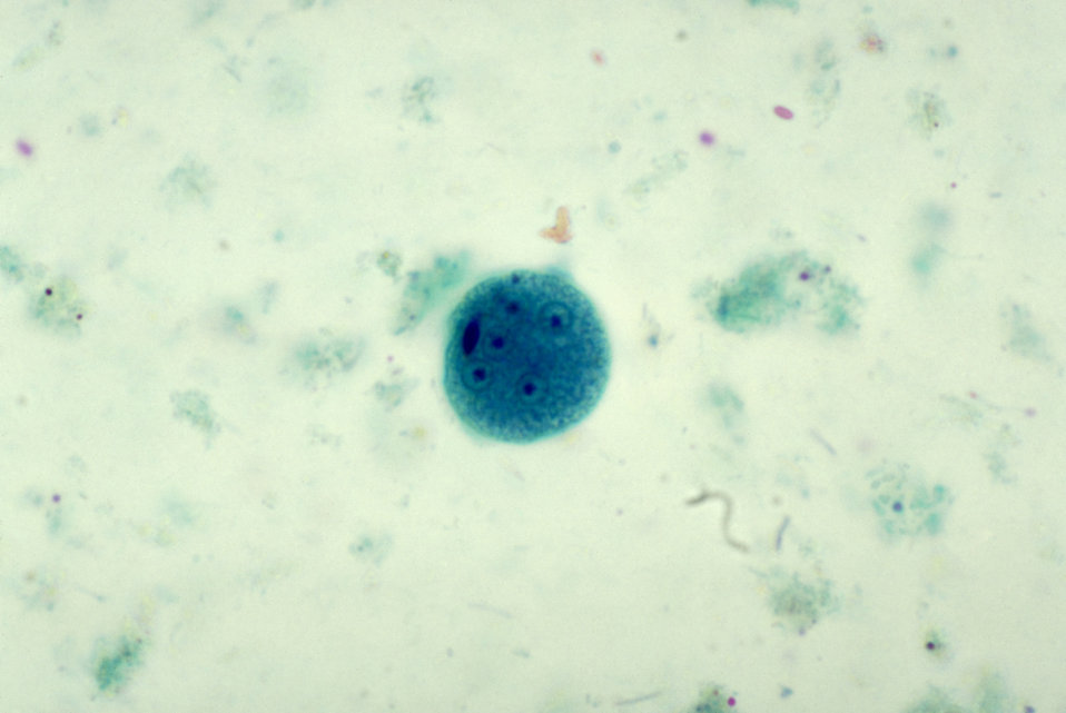 This photomicrograph depicted a mature Entamoeba coli cyst, containing five nuclei, and a visible chromatoid body.