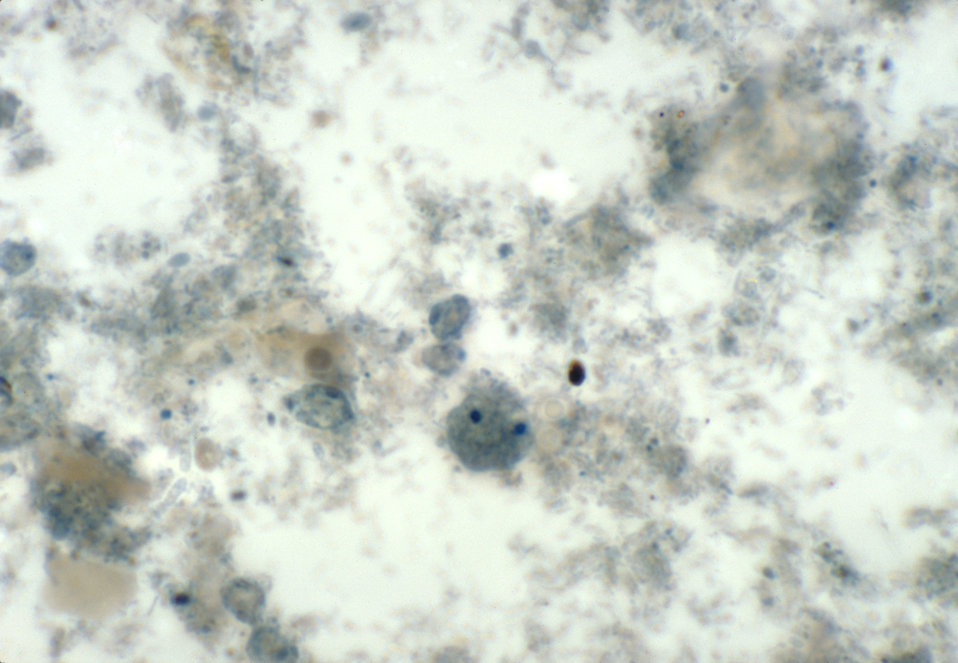 This iron-hematoxylin stained photomicrograph depicts a binucleated amoebic trophozoite of a Dientamoeba fragilis parasite.