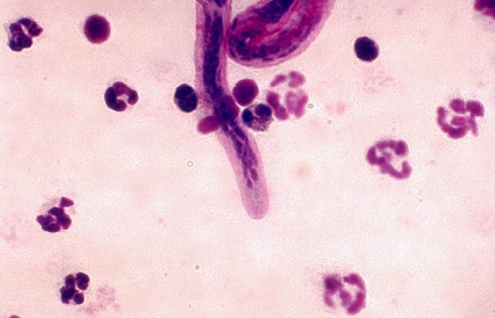 Brugia malayi, agent of filariasis.  Anterior end.  Parasite.