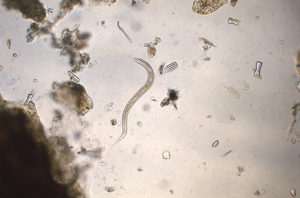 Under a magnification of 128X, this photomicrograph revealed some of the morphologic ultrastructure of a hookworm rhabditiform larva. Rhabdi