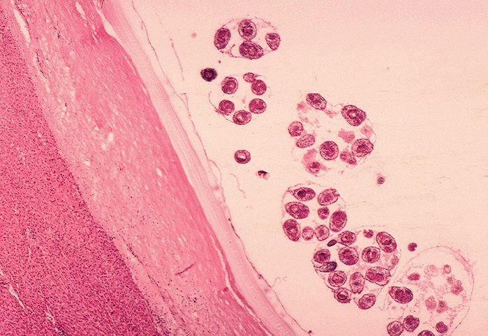 Histopathology of Echinococcus granulosus hydatid cyst in a sheep.