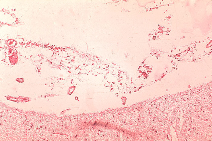 Histopathology of meninges in fatal human anthrax.