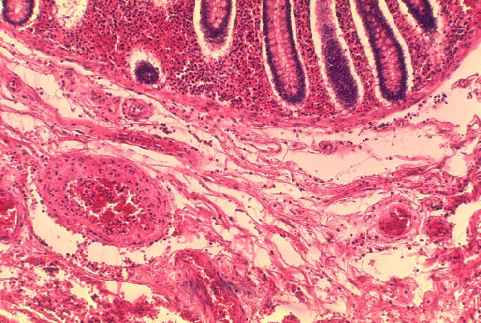 Histopathology of large intestine in fatal human anthrax.