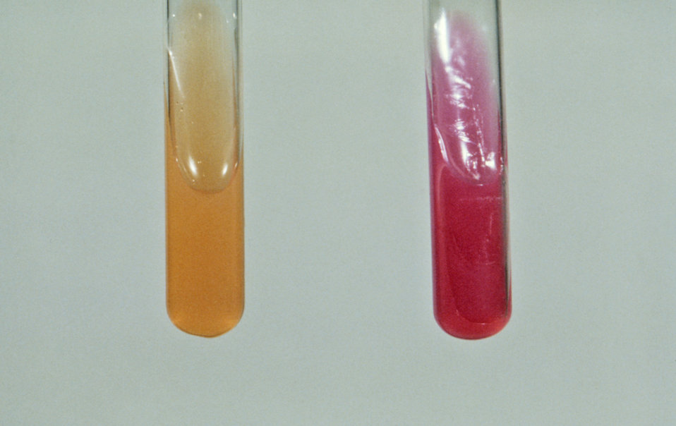 This urease test, based on the process involving the hydrolysis of urea, was performed to help identify the Gram-negative enteric bacterium