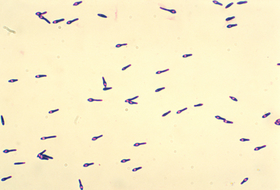 A photomicrograph of Clostridium botulinum type A viewed using a Gram stain technique.