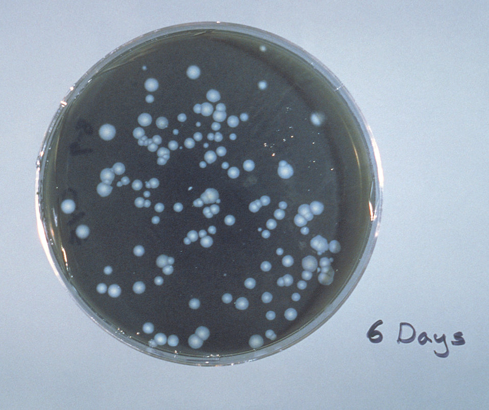 Charcoal-Yeast extract agar plate culture of Legionella pneumophilia.