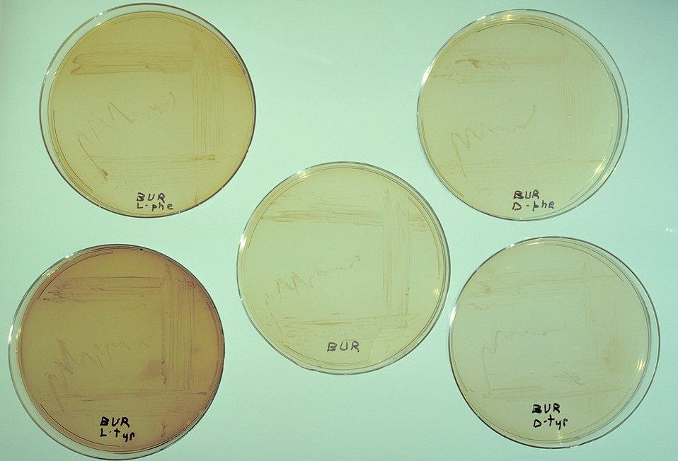 Agar plate cultures of various strains of Legionella pneumophilia.