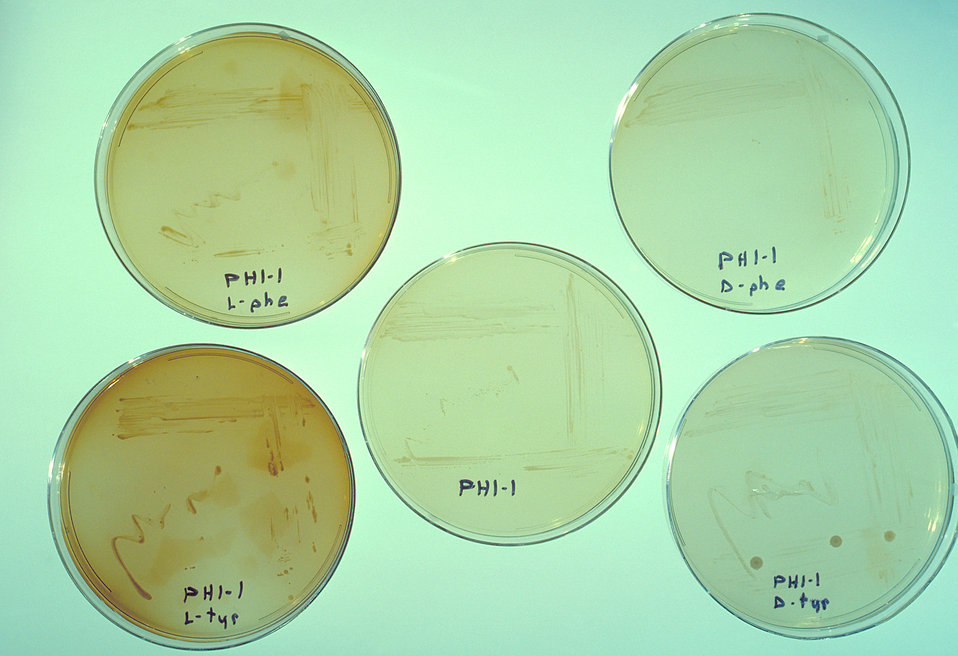 Agar plate cultures of various strains of Legionella pneumophila.