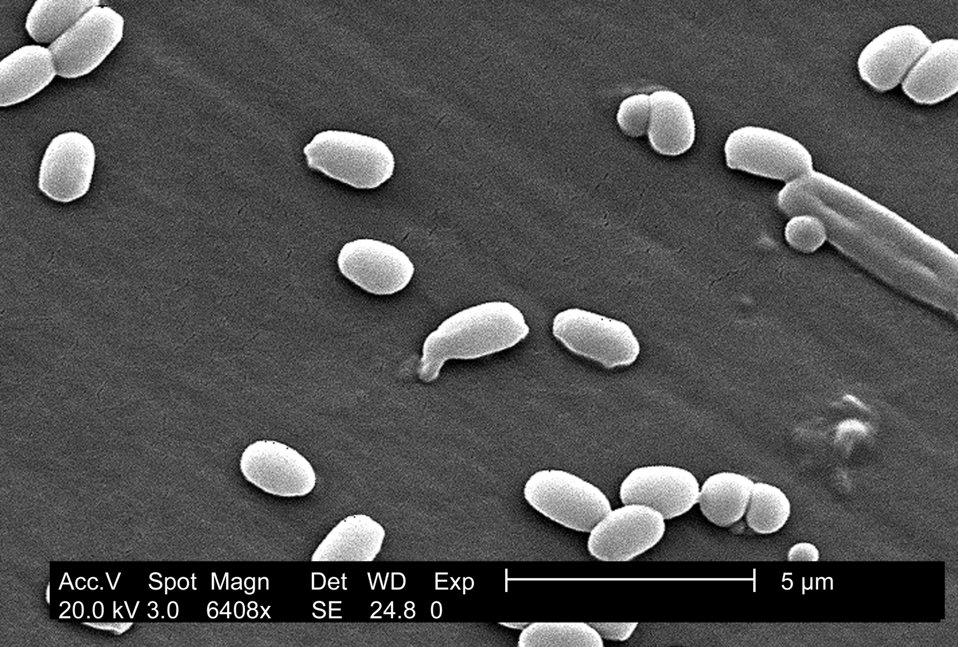 Under a magnification of 6,408X, this scanning electron micrograph (SEM) depicted spores from the Aimes strain of Bacillus anthracis bacteri