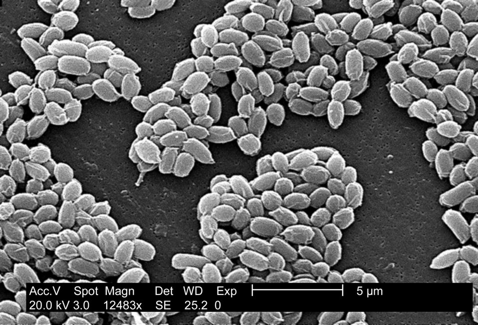 Under a high magnification of 12,483X, this scanning electron micrograph (SEM) depicted spores from the Sterne strain of Bacillus anthracis