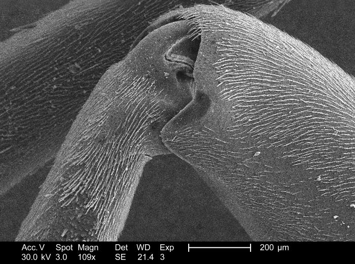 Magnified 109x, this 2005 scanning electron micrograph (SEM) revealed that this unidentified wasp's leg appendage bore many sensorial 'hairs
