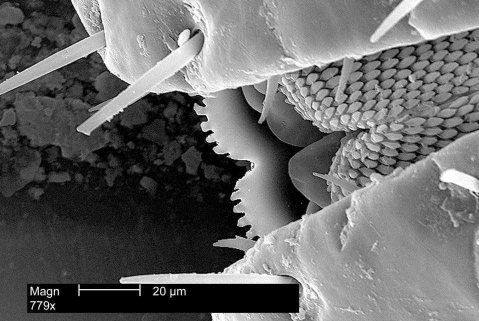 Enlarged view of mouth parts of an American Dog Tick, Dermacentor variabilis, magnified 779x.