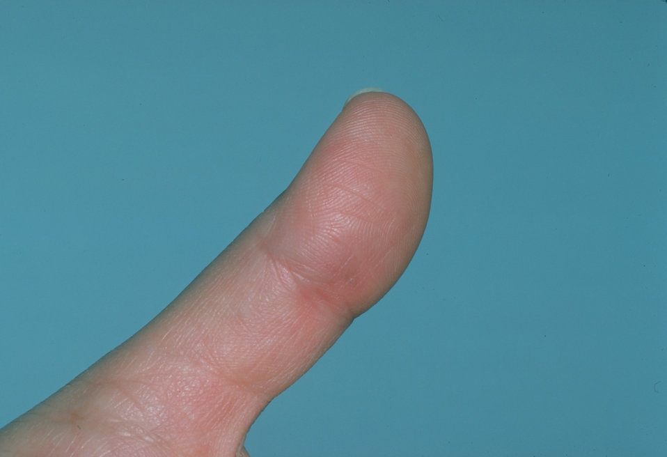 This patient presented with sporotrichosis affecting the skin of the thumb.