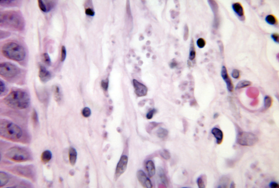 Histopathology of leishmaniasis of skin due to Leishmania brasiliensis.  Parasite.