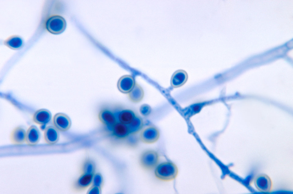 This photomicrograph reveals the conidiophores with conidia of the fungus Pseudallescheria boydii from a slide culture.