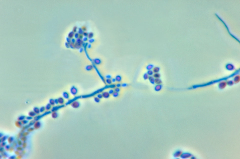 This photomicrograph reveals the conidiophores and conidia of the fungus Sporothrix schenckii.