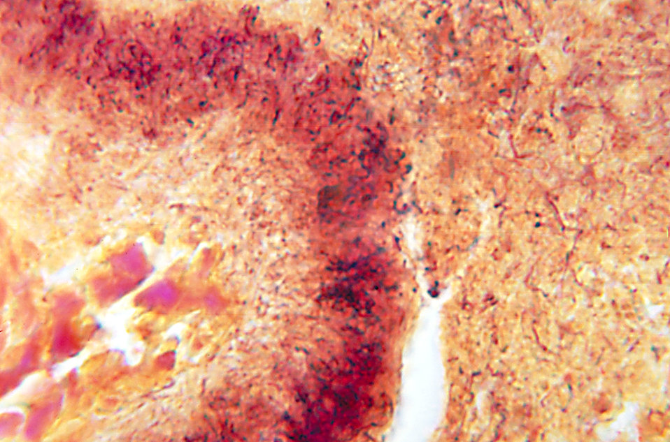 This is the histopathologic appearance of an actinomycetic mycetomatous granule using a Brown and Brenn stain.