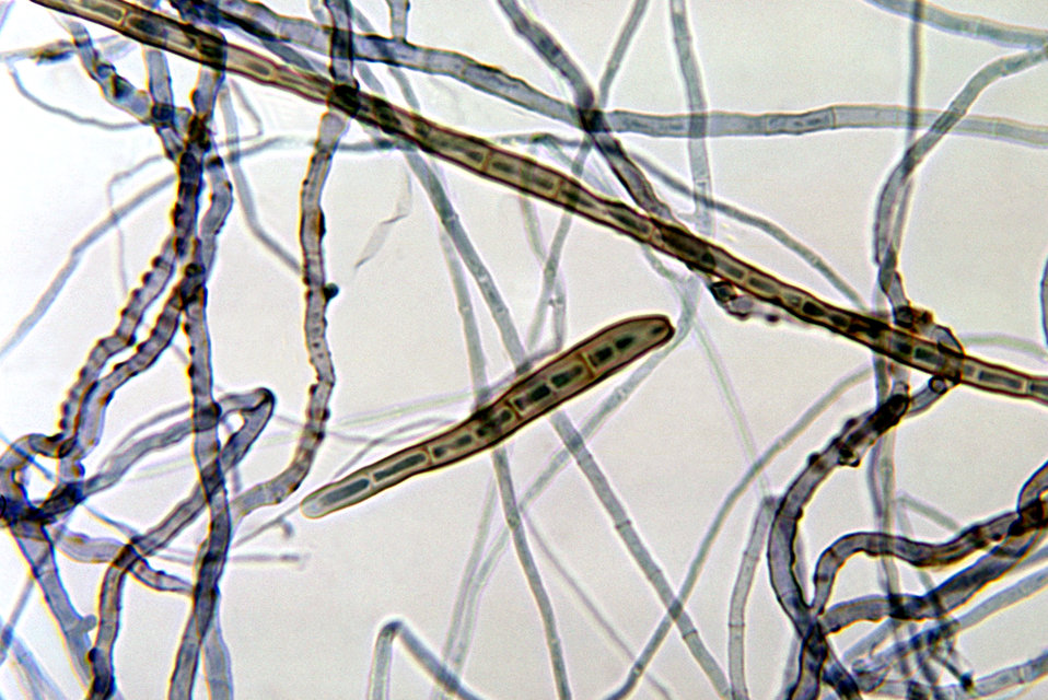 This photomicrograph depicts the mould Corynespora cassiicola of the group Fungi Imperfecti, taken from a slide culture.