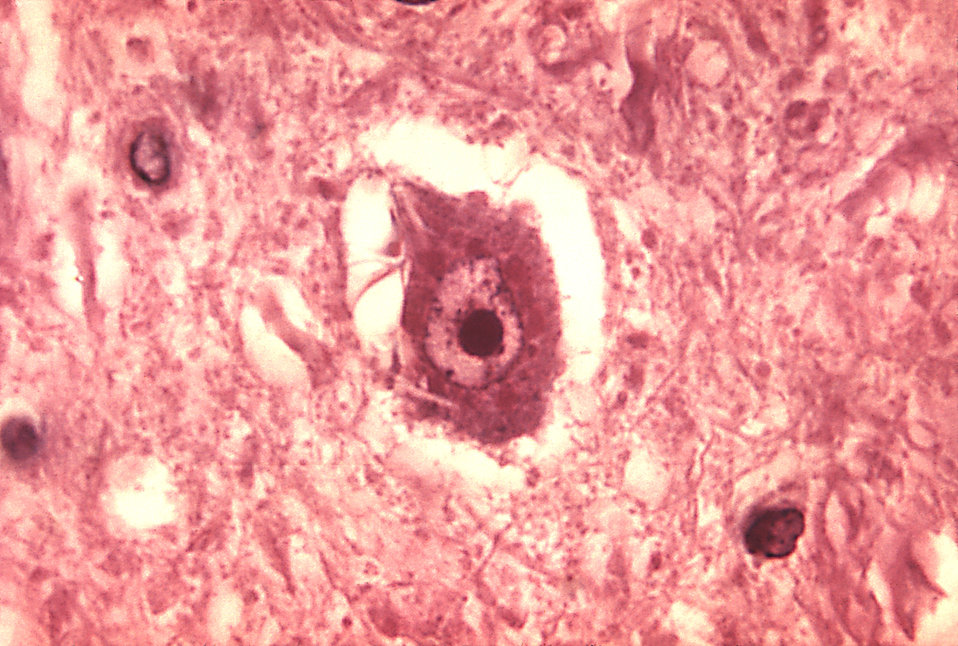 This micrograph depicts the histopathologic changes associated with rabies encephalitis prepared using an H&E stain.