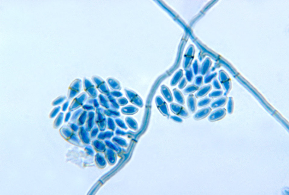This photomicrograph reveals the conidiophores with conidia of the fungus Cladosporium werneckii from a slide culture.