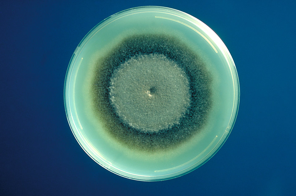 This was a plate culture of Exserohilum rostratum, a fungus, which causes Phaeohyphomycosis.