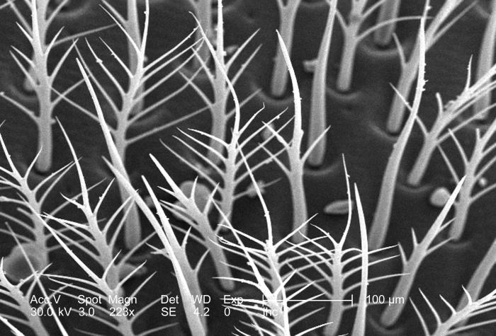 At a relatively low magnification of 223x, this scanning electron micrograph (SEM) depicted what appeared to be an arboreal field of small t