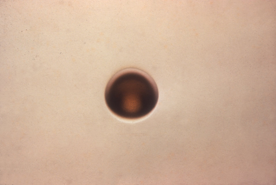 This is an enlargement of a Type-1 colony of Neisseria gonorrhoeae bacteria.
