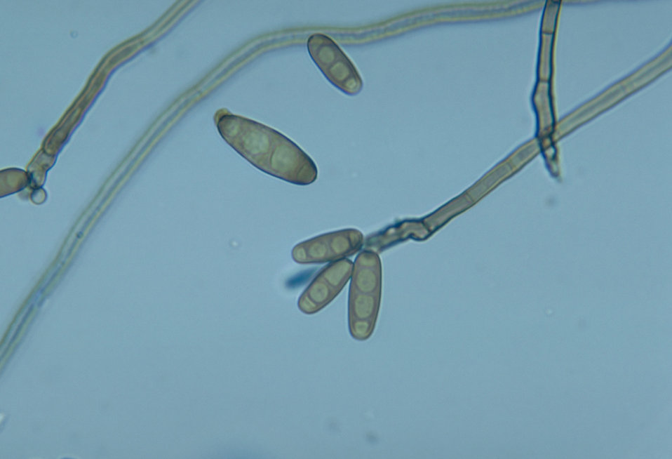 This photomicrograph shows conidiophores and conidia of the fungus Curvularia harveyi.